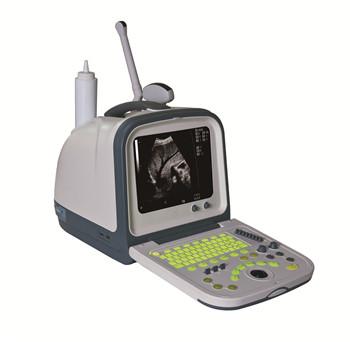 海鹰便携式黑白超声诊断仪HY-5511